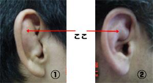 の が 痛い 入り口 耳 耳の奥がズキンと痛い!3つの原因とストレスによる影響!